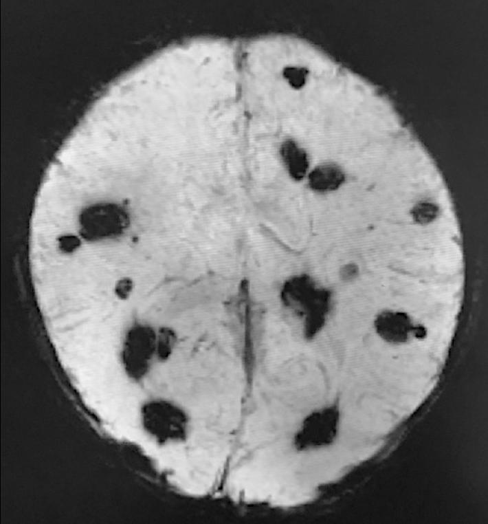 腫 血管 海綿 状